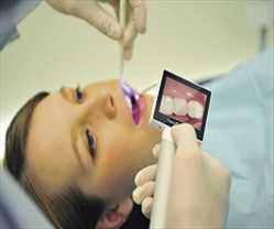 Pasar Kamera Digital Intra Oral Global