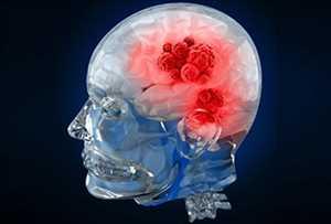 Pasar <span class = 'notranslate'> Diagnostik Kanker Otak </span>
