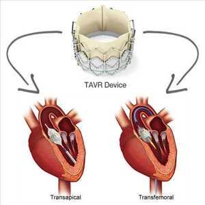Pasar <span class = 'notranslate'> Penggantian/Implantasi Katup Aorta Transkateter (TAVR/TAVI) </span>